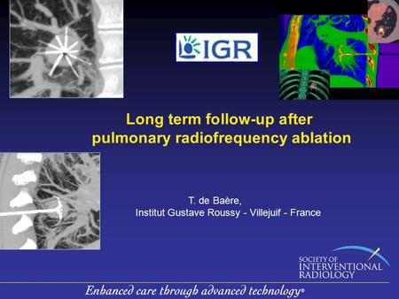 Long term follow-up after pulmonary radiofrequency ablation T. de Baère, Institut Gustave Roussy - Villejuif - France.
