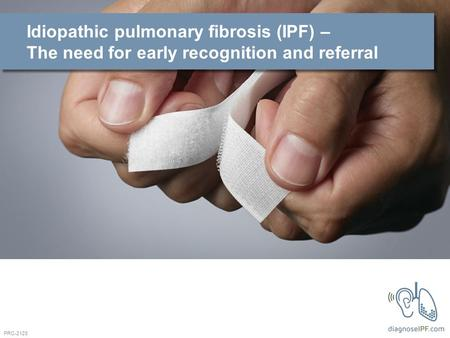 Idiopathic pulmonary fibrosis (IPF) – The need for early recognition and referral PRC-2128.