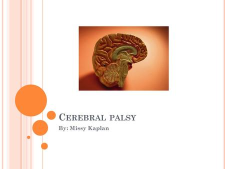 C EREBRAL PALSY By: Missy Kaplan. O UTLINE Introduction to Cerebral Palsy Epidemiology Etiology Treatment and Prevention Dental Management.