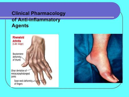 Clinical Pharmacology of Anti-inflammatory Agents.
