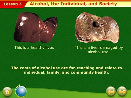 Lesson 3 This is a healthy liver.This is a liver damaged by alcohol use. The costs of alcohol use are far-reaching and relate to individual, family, and.