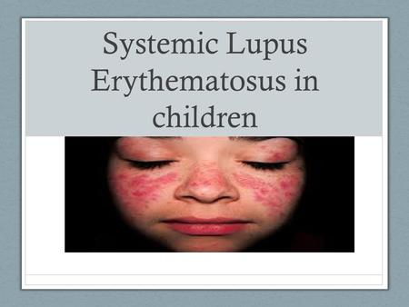 Systemic Lupus Erythematosus in children. Objectives Student will be able to define Lupus Student will be able list at least 3 clinical manifestation.