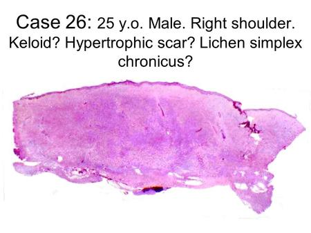 Case 26: 25 y.o. Male. Right shoulder. Keloid? Hypertrophic scar? Lichen simplex chronicus?