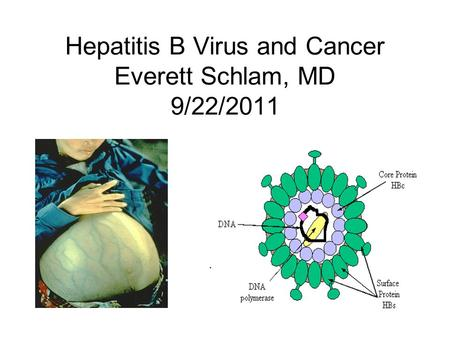 Hepatitis B Virus and Cancer Everett Schlam, MD 9/22/2011.