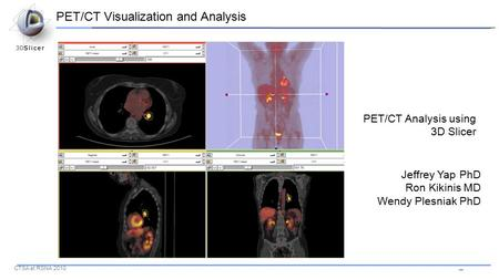 -- CTSA at RSNA 2010 PET/CT Analysis using 3D Slicer Jeffrey Yap PhD Ron Kikinis MD Wendy Plesniak PhD PET/CT Visualization and Analysis.