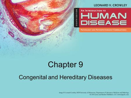 Chapter 9 Congenital and Hereditary Diseases. Learning Objectives (1 of 2) Describe –Common causes of congenital malformations and their incidence –Abnormalities.
