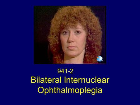 Bilateral Internuclear Ophthalmoplegia 941-2. Eye Movements Bilateral Internuclear Ophthalmoplegia Acquired Pendular Nystagmus Lid Nystagmus Upbeat Nystagmus.