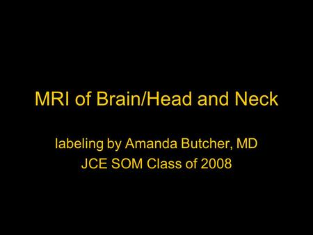 MRI of Brain/Head and Neck labeling by Amanda Butcher, MD JCE SOM Class of 2008.