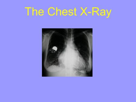 The Chest X-Ray. Contents: Patient Data Techniques CXR Interpretation.