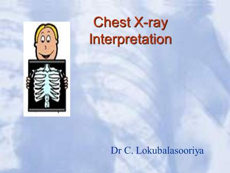 Chest X-ray Interpretation Dr C. Lokubalasooriya.