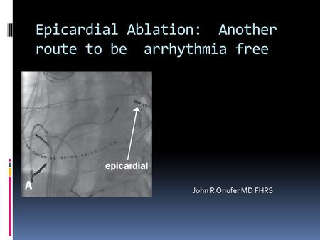 Epicardial Ablation: Another route to be arrhythmia free John R Onufer MD FHRS.