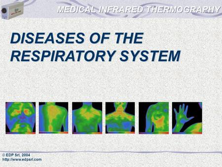 © EDP Srl, 2004  DISEASES OF THE RESPIRATORY SYSTEM.