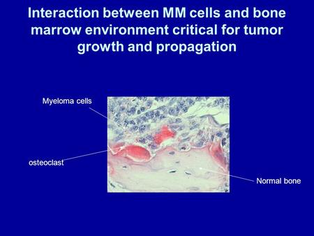 Interaction between MM cells and bone marrow environment critical for tumor growth and propagation osteoclast Myeloma cells Normal bone.