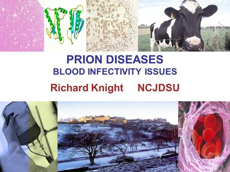 PRION DISEASES BLOOD INFECTIVITY ISSUES Richard Knight NCJDSU.