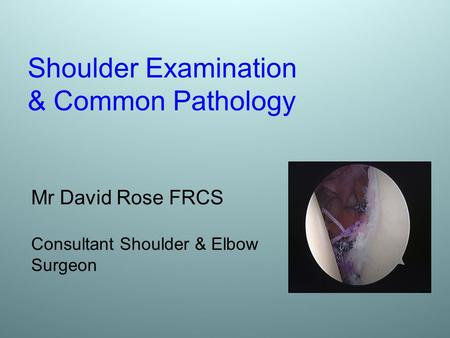 Shoulder Examination & Common Pathology
