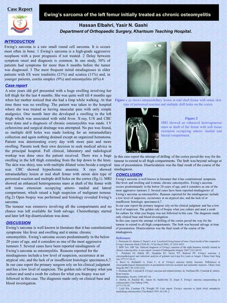 Ewing's sarcoma of the left femur initially treated as chronic osteomyelitis Hassan Elbahri, Yasir N. Gashi INTRODUCTION Ewing's sarcoma is a rare small.