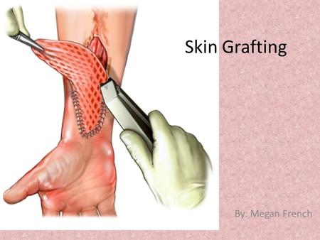 Skin Grafting By: Megan French. The Skin  The skin is the largest organ of the body  3 main layers : Epidermis, Dermis, Subcutaneous  Regulates body.