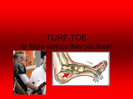 TURF TOE Its More serious they you think!. Anatomical structures (Muscles) Over 100 muscles, tendons Tibialis Anterior- Dorsiflexes foot and inverts foot.