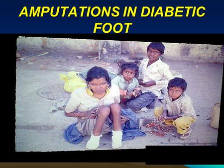 AMPUTATIONS IN DIABETIC FOOT. PROF. RAMA KANT KING GEORGE MEDICAL UNIVERSITY LUCKNOW