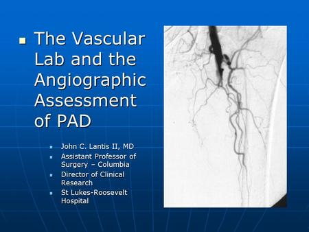 The Vascular Lab and the Angiographic Assessment of PAD The Vascular Lab and the Angiographic Assessment of PAD John C. Lantis II, MD John C. Lantis II,