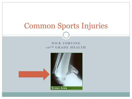 NICK CORVINE 10 TH GRADE HEALTH Common Sports Injuries.