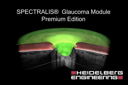 SPECTRALIS® Glaucoma Module Premium Edition. SD-OCT BMO Clinically Visible Optic Disc Margin Image Courtesy Dr. Balwantray C. Chauhan, Halifax, Canada.