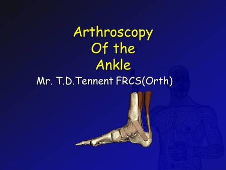 Arthroscopy Of the Ankle Arthroscopy Of the Ankle Mr. T.D.Tennent FRCS(Orth)