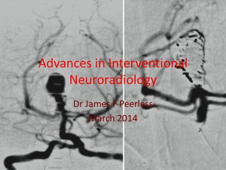 Advances in Interventional Neuroradiology Dr James F Peerless March 2014.