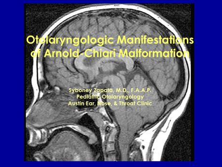 Otolaryngologic Manifestations of Arnold-Chiari Malformation Syboney Zapata, M.D., F.A.A.P. Pediatric Otolaryngology Austin Ear, Nose, & Throat Clinic.