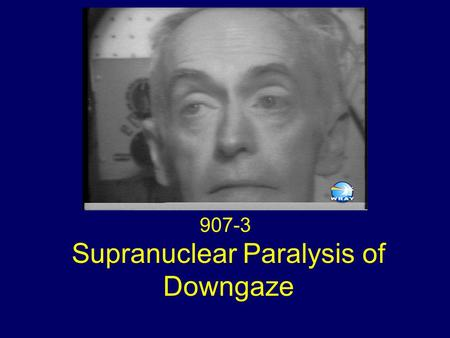 Supranuclear Paralysis of Downgaze 907-3. Eye Movements Global paralysis of downgaze Absent convergence Slow saccades on upgaze Deviation of the eyes.