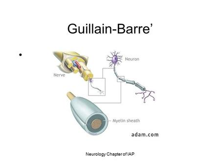 Neurology Chapter of IAP Guillain-Barre'. Neurology Chapter of IAP Guillain-Barre' Syndrome Post-infectious polyneuropathy; ascending polyneuropathic.