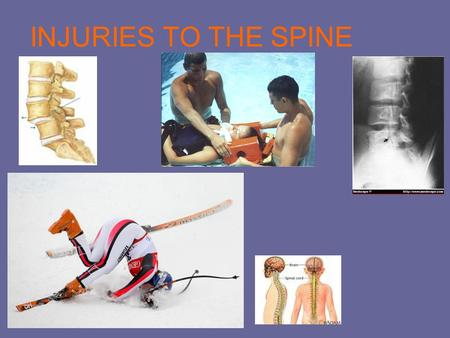 INJURIES TO THE SPINE. What is the injury? Most spinal cord injuries are a result from catastrophic falls, car accidents, sports related, or any kind.