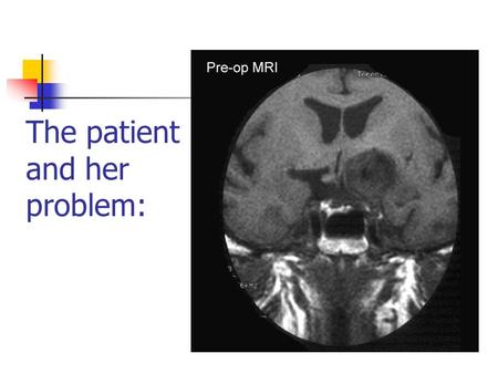 "The patient and her problem:. Aneurysms can be treated by applying a clip to the ""neck"" Aneurysm."