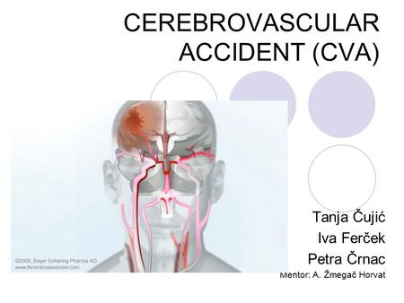 cerebrovascular accident cva - ppt download, Skeleton