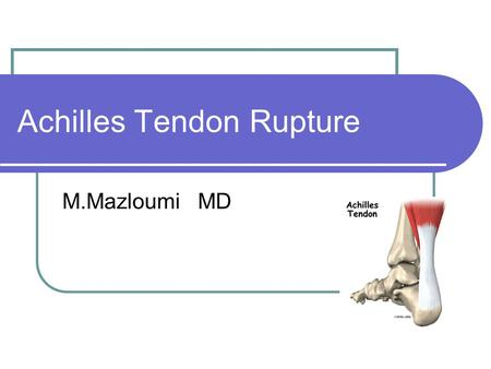 Achilles Tendon Rupture M.Mazloumi MD. Anatomy Largest tendon in the body Origin from gastrocnemius and soleus muscles Insertion on calcaneal tuberosity.