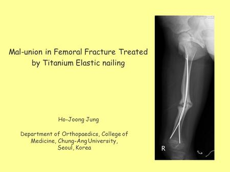 Mal-union in Femoral Fracture Treated by Titanium Elastic nailing Department of Orthopaedics, College of Medicine, Chung-Ang University, Seoul, Korea Ho-Joong.