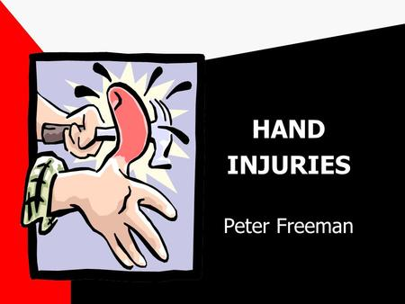 HAND INJURIES Peter Freeman. ESSENTIALS A thorough knowledge of hand anatomy and function is essential for proper management of the injured hand Most.