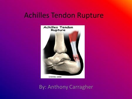 Achilles Tendon Rupture By: Anthony Carragher. What is the Achilles tendon? The Achilles tendon is a large ropelike band of fibrous tissue in the back.