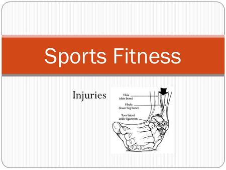 Sports Fitness Injuries. Session 13 Objectives The student will learn how to define, identify, and treat the basic sports injuries associated with wellness.