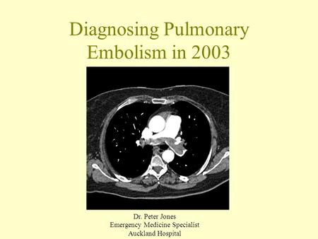 Diagnosing Pulmonary Embolism in 2003 Dr. Peter Jones Emergency Medicine Specialist Auckland Hospital.