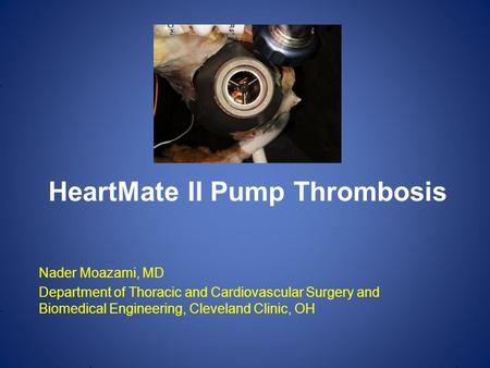 Nader Moazami, MD Department of Thoracic and Cardiovascular Surgery and Biomedical Engineering, Cleveland Clinic, OH HeartMate II Pump Thrombosis.