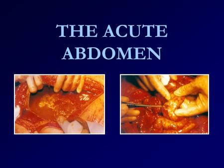 THE ACUTE ABDOMEN. When do we talk about acute abdominal pain ? Abdominal pain that has lasted for less than 7-10 days, is not yet diagnosed and that.