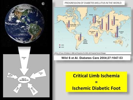 PROGRESSION OF DIABETES MELLITUS IN THE WORLD Critical Limb Ischemia = Ischemic Diabetic Foot Critical Limb Ischemia = Ischemic Diabetic Foot Wild S et.