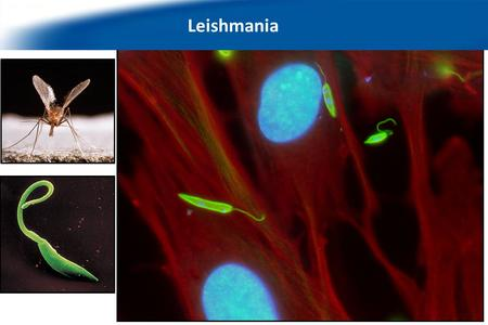 We work with the protozoan parasite Leishmania… Leishmania.