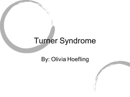 Turner Syndrome By: Olivia Hoefling.