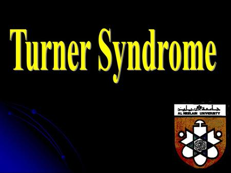Turner Syndrome.