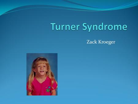Zack Kroeger. Alternate names TS Monosomy X Ullrich- Turner Syndrome 45,X.