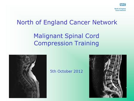 North of England Cancer Network Malignant Spinal Cord Compression Training 5th October 2012.