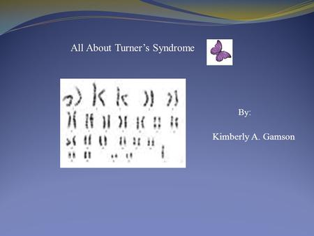 Kimberly A. Gamson All About Turner's Syndrome By :