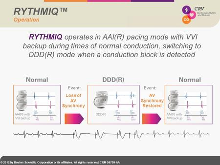 RYTHMIQ™ Operation RYTHMIQ operates in AAI(R) pacing mode with VVI backup during times of normal conduction, switching to DDD(R) mode when a conduction.